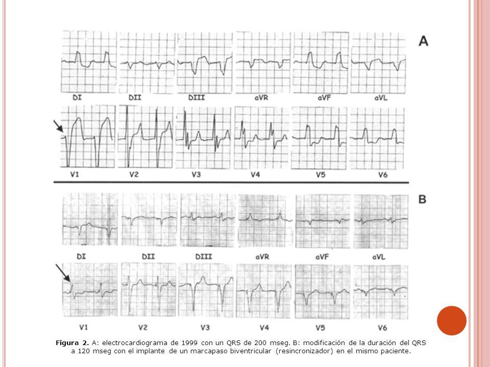 Figura 2.A: electrocardiograma de 1999 con un QRS de 200 mseg.