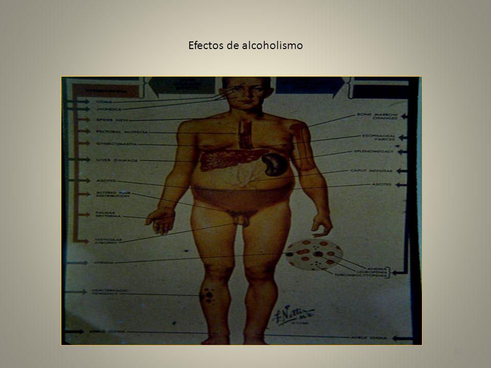 Hepatitis alcohólica cirrosis- lesión viral 11