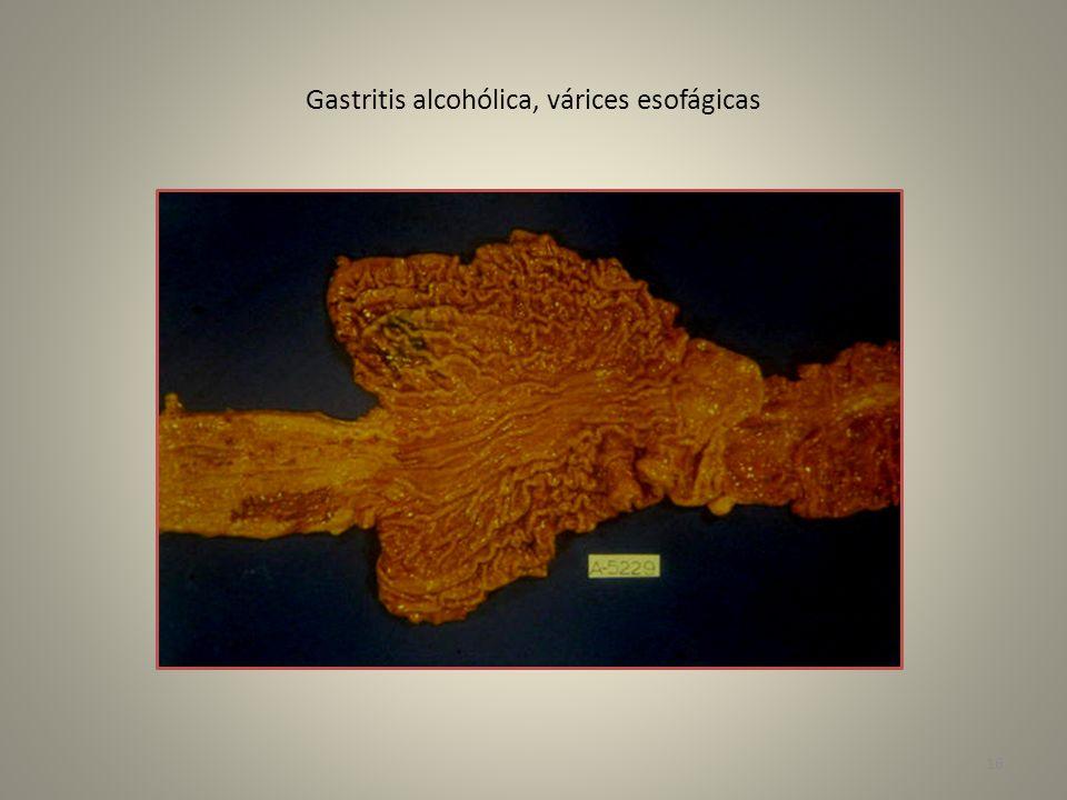 Gastritis alcohólica, várices esofágicas 16