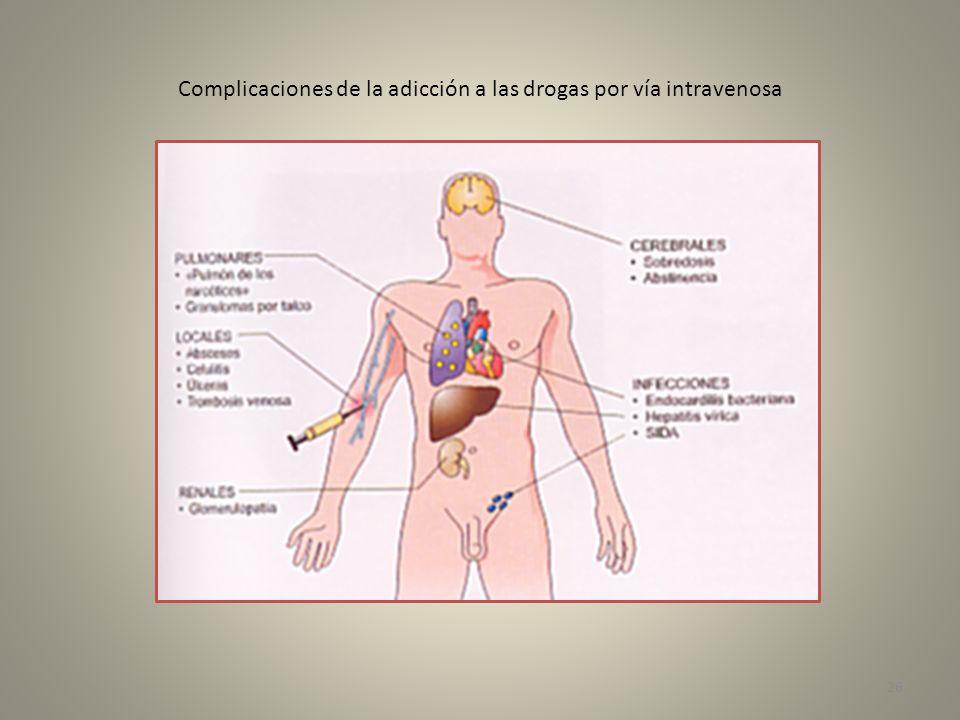 Complicaciones de la adicción a las drogas por vía intravenosa 26