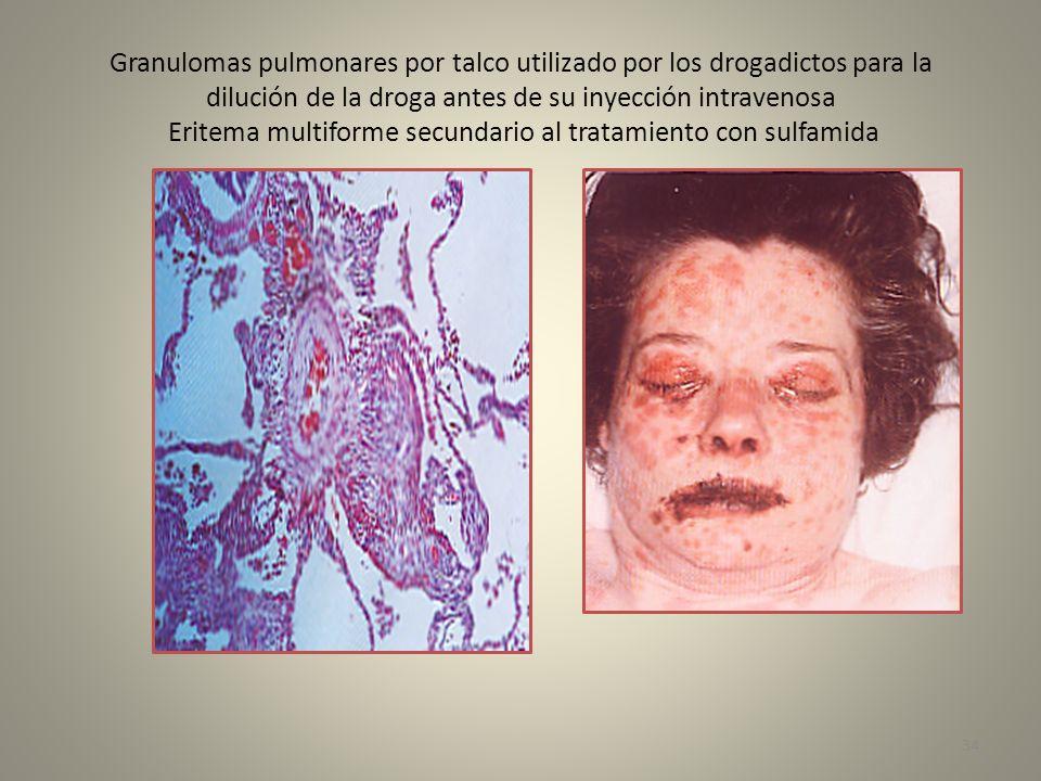 Granulomas pulmonares por talco utilizado por los drogadictos para la dilución de la droga antes de su inyección intravenosa Eritema multiforme secund