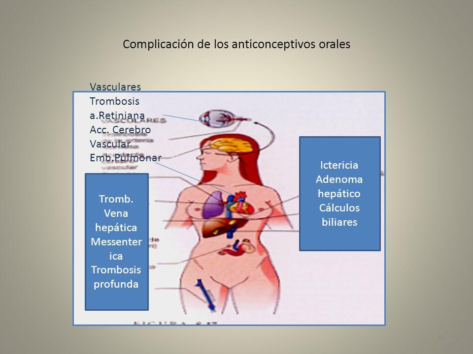 Complicación de los anticonceptivos orales Vasculares Trombosis a.Retiniana Acc. Cerebro Vascular Emb.Pulmonar I.M. Tromb. Vena hepática Messenter ica