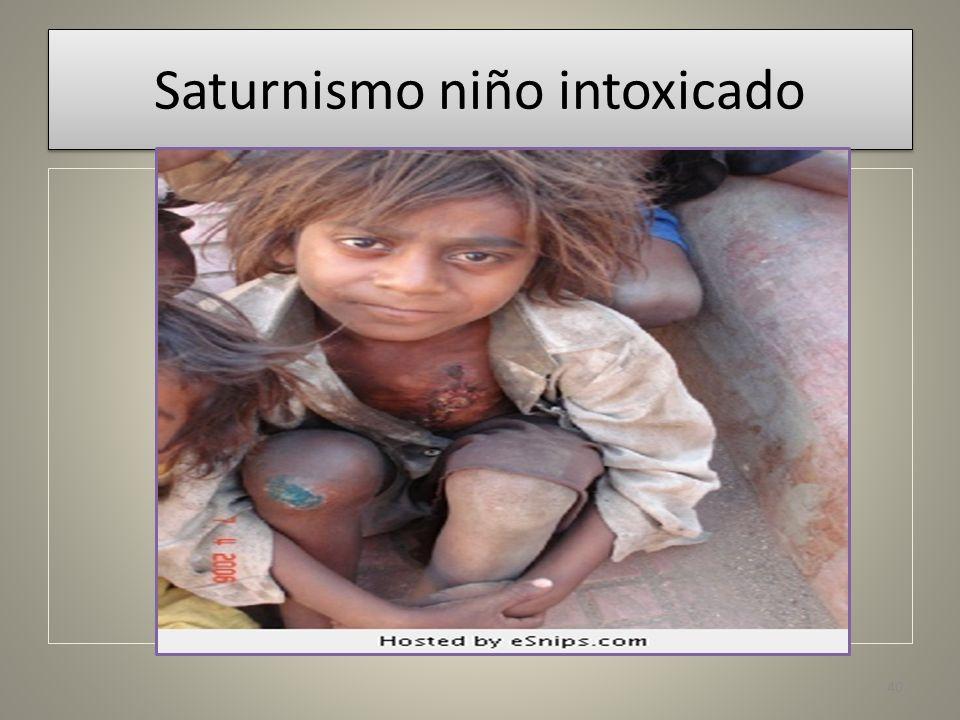 Saturnismo niño intoxicado 40