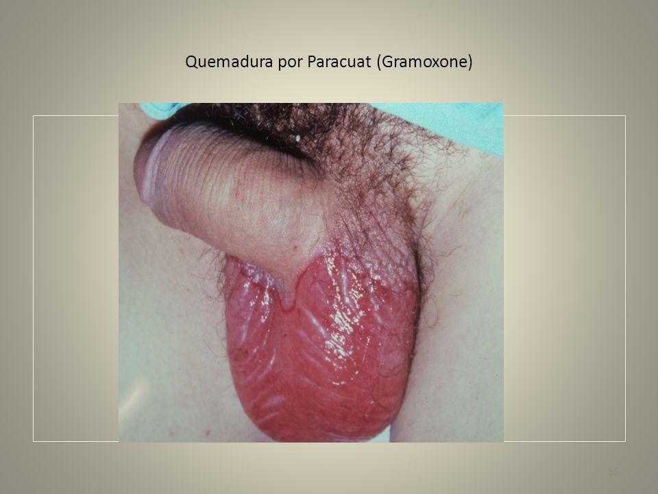 Quemadura por Paracuat (Gramoxone) 55