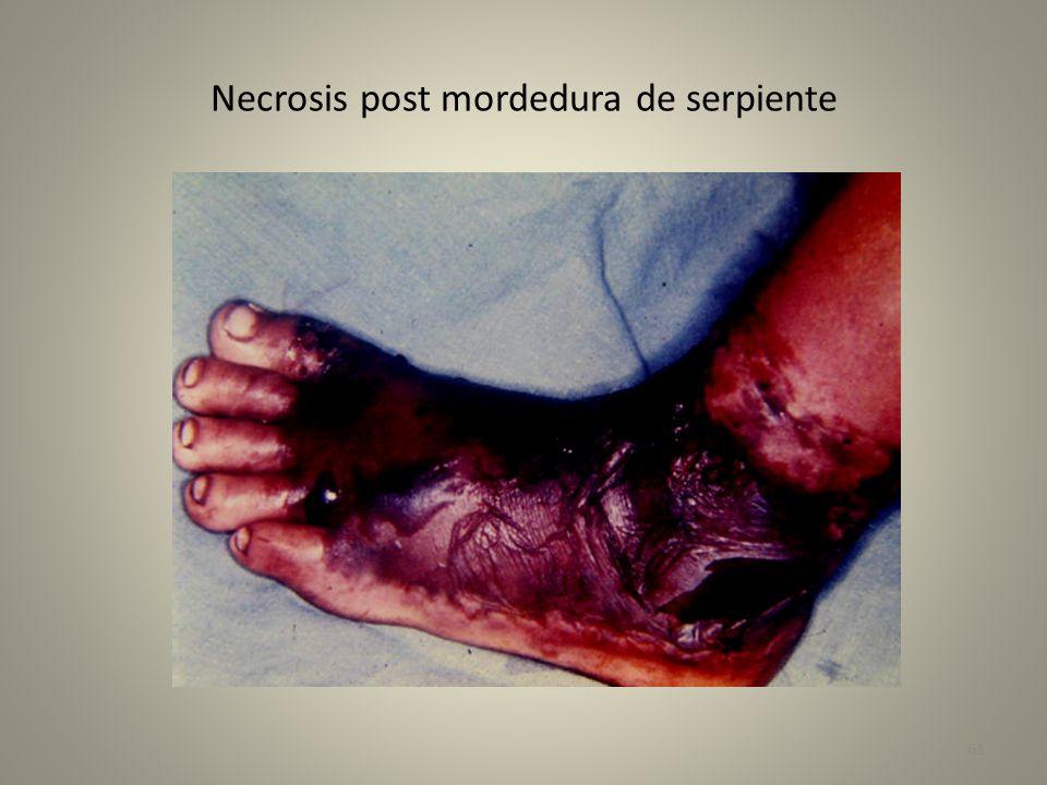 Corte de facia por edema de pierna - mordedura de serpiente 62