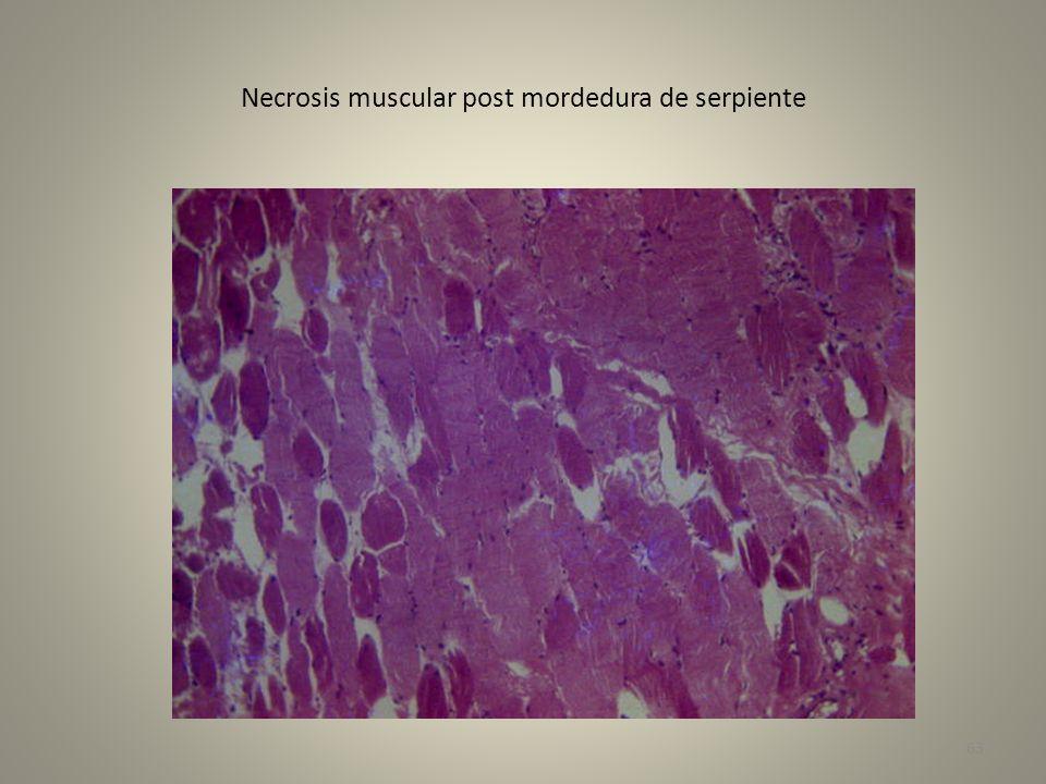 Necrosis muscular post mordedura de serpiente 63