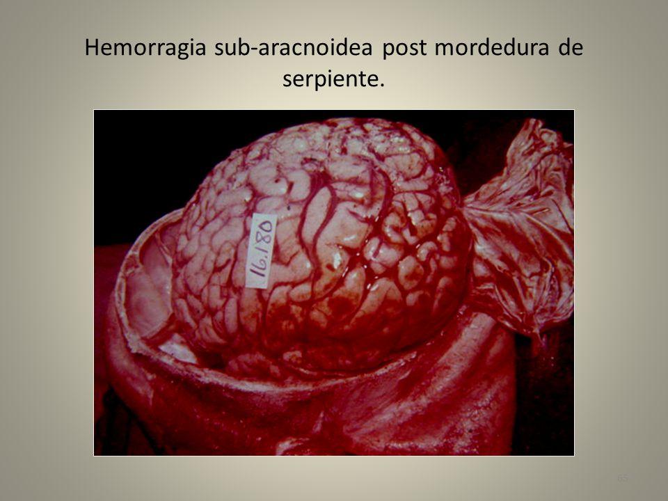 Hemorragia sub-aracnoidea post mordedura de serpiente. 65