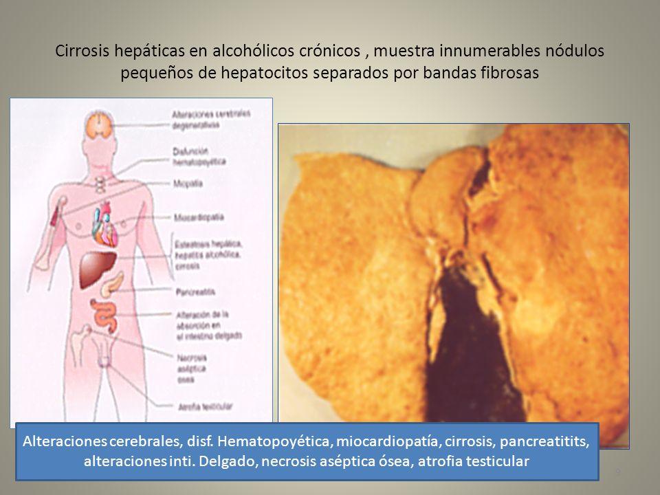 Cirrosis hepáticas en alcohólicos crónicos, muestra innumerables nódulos pequeños de hepatocitos separados por bandas fibrosas Alteraciones cerebrales