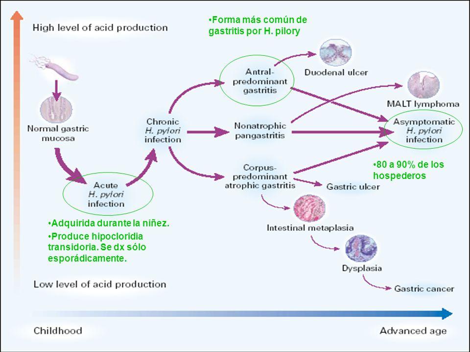 Forma más común de gastritis por H. pilory 80 a 90% de los hospederos Adquirida durante la niñez. Produce hipocloridia transidoria. Se dx sólo esporád