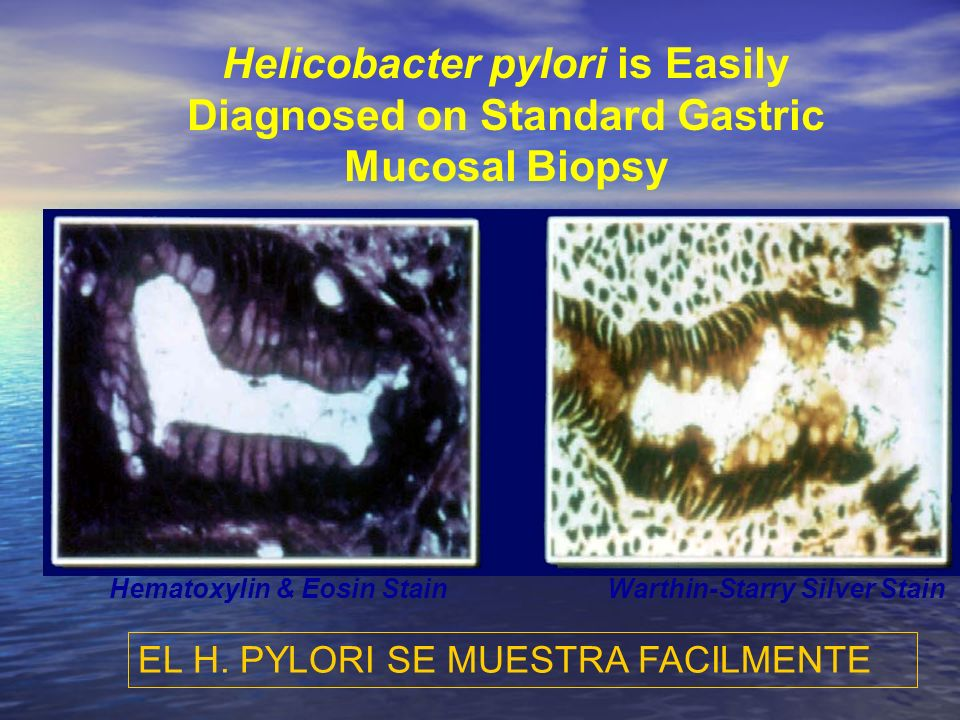 Helicobacter pylori is Easily Diagnosed on Standard Gastric Mucosal Biopsy EL H. PYLORI SE MUESTRA FACILMENTE Hematoxylin & Eosin StainWarthin-Starry