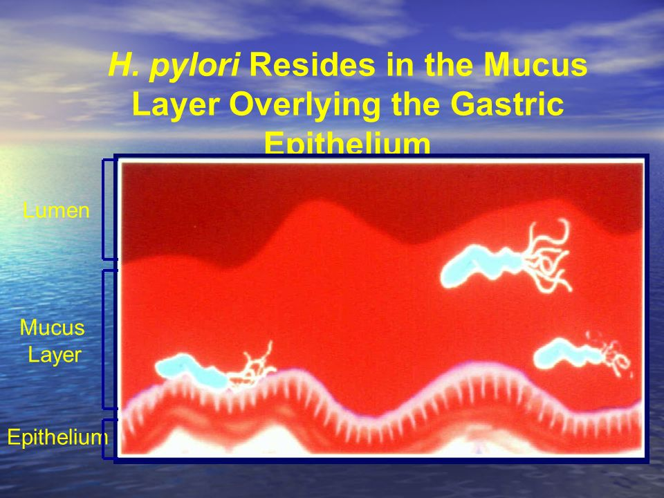 H. pylori Resides in the Mucus Layer Overlying the Gastric Epithelium Lumen Mucus Layer Epithelium