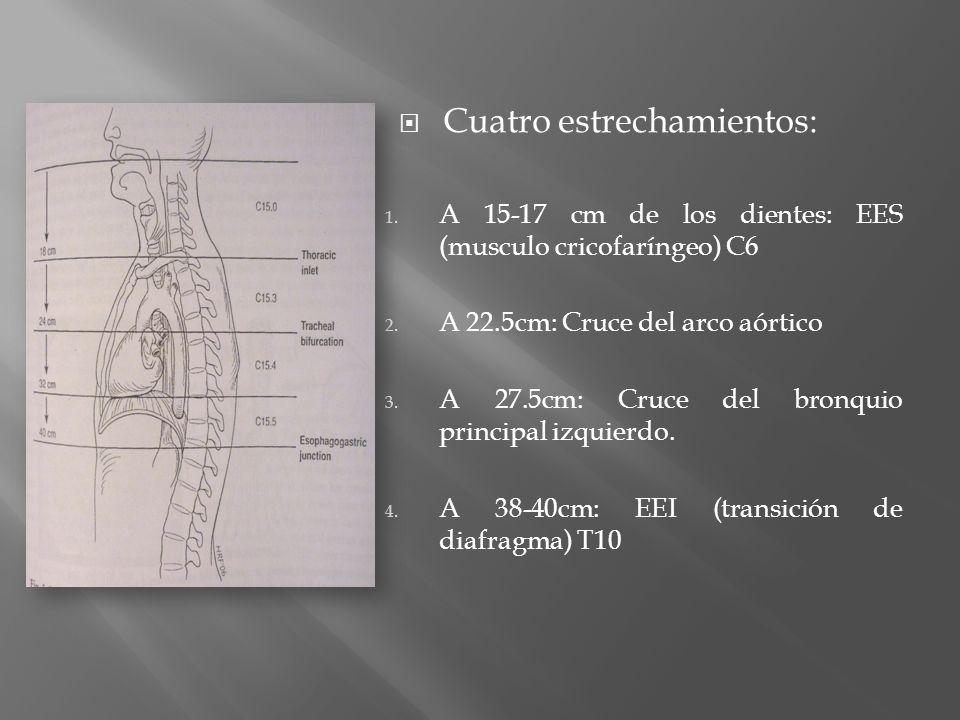 Cuatro estrechamientos: 1. A 15-17 cm de los dientes: EES (musculo cricofaríngeo) C6 2. A 22.5cm: Cruce del arco aórtico 3. A 27.5cm: Cruce del bronqu
