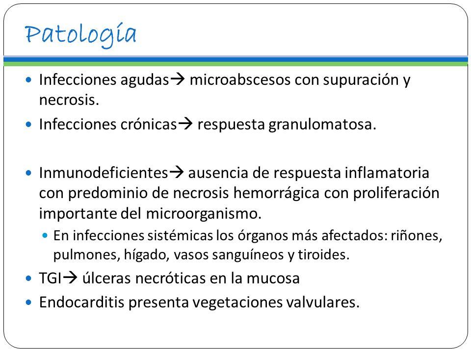 Patología Infecciones agudas microabscesos con supuración y necrosis. Infecciones crónicas respuesta granulomatosa. Inmunodeficientes ausencia de resp