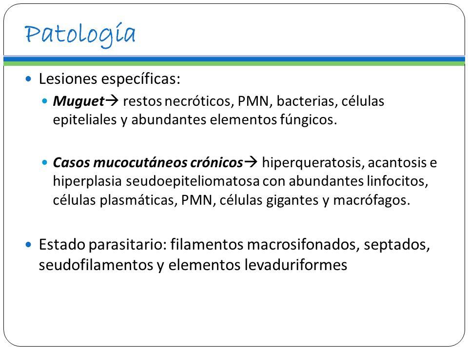 Patología Lesiones específicas: Muguet restos necróticos, PMN, bacterias, células epiteliales y abundantes elementos fúngicos. Casos mucocutáneos crón