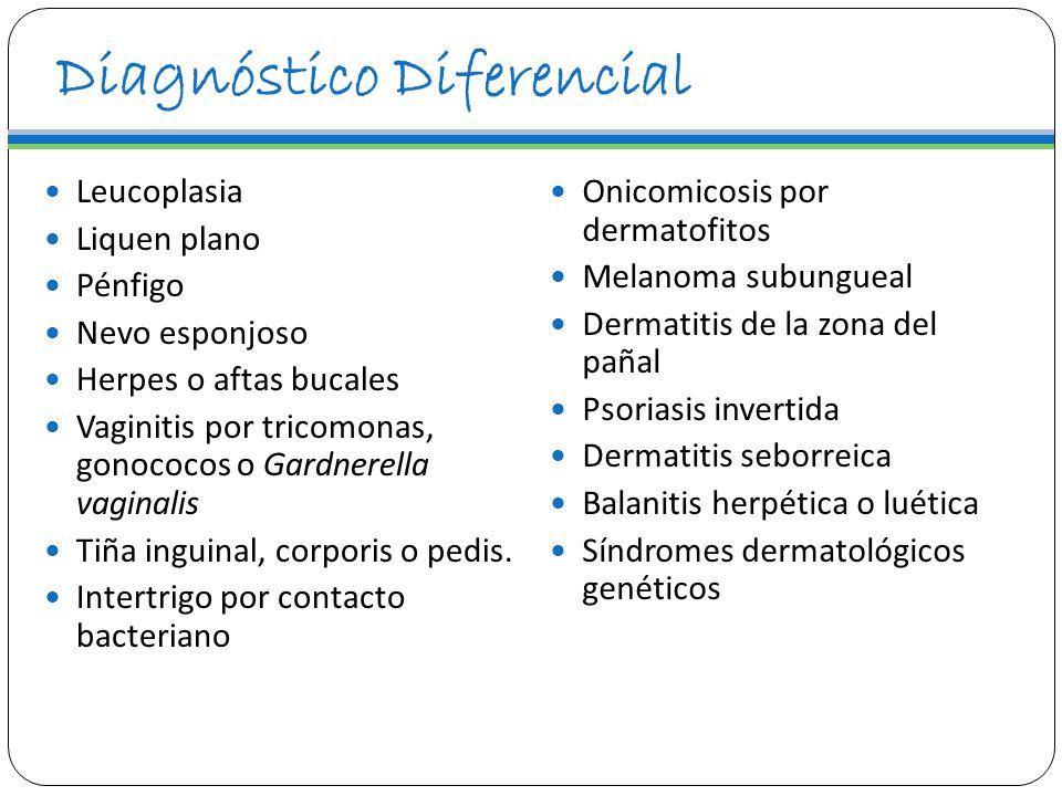 Diagnóstico Diferencial Leucoplasia Liquen plano Pénfigo Nevo esponjoso Herpes o aftas bucales Vaginitis por tricomonas, gonococos o Gardnerella vagin