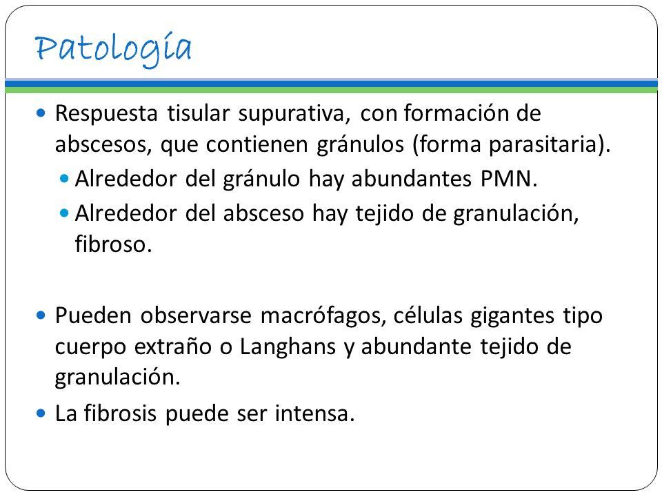 Patología Respuesta tisular supurativa, con formación de abscesos, que contienen gránulos (forma parasitaria). Alrededor del gránulo hay abundantes PM
