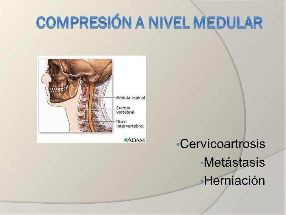 Cervicoartrosis Metástasis Herniación