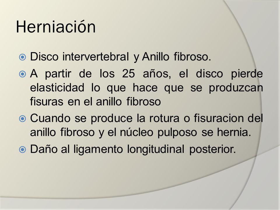 Herniación Disco intervertebral y Anillo fibroso. A partir de los 25 años, el disco pierde elasticidad lo que hace que se produzcan fisuras en el anil
