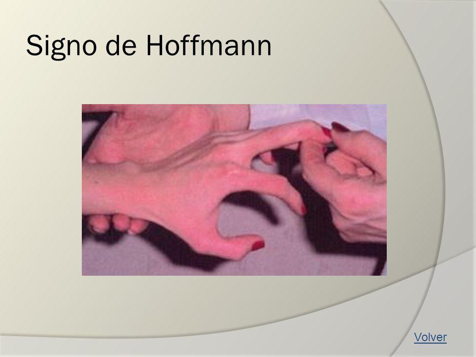 Signo de Hoffmann Volver