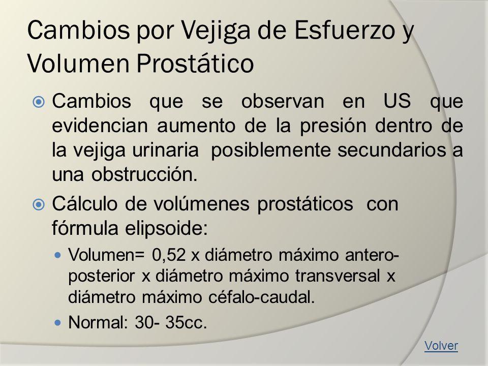 Cambios por Vejiga de Esfuerzo y Volumen Prostático Cambios que se observan en US que evidencian aumento de la presión dentro de la vejiga urinaria po