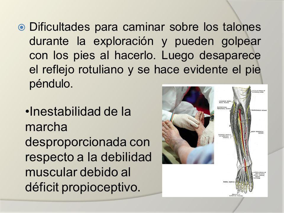 Dificultades para caminar sobre los talones durante la exploración y pueden golpear con los pies al hacerlo. Luego desaparece el reflejo rotuliano y s