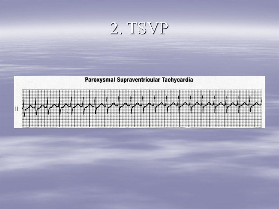 2. TSVP
