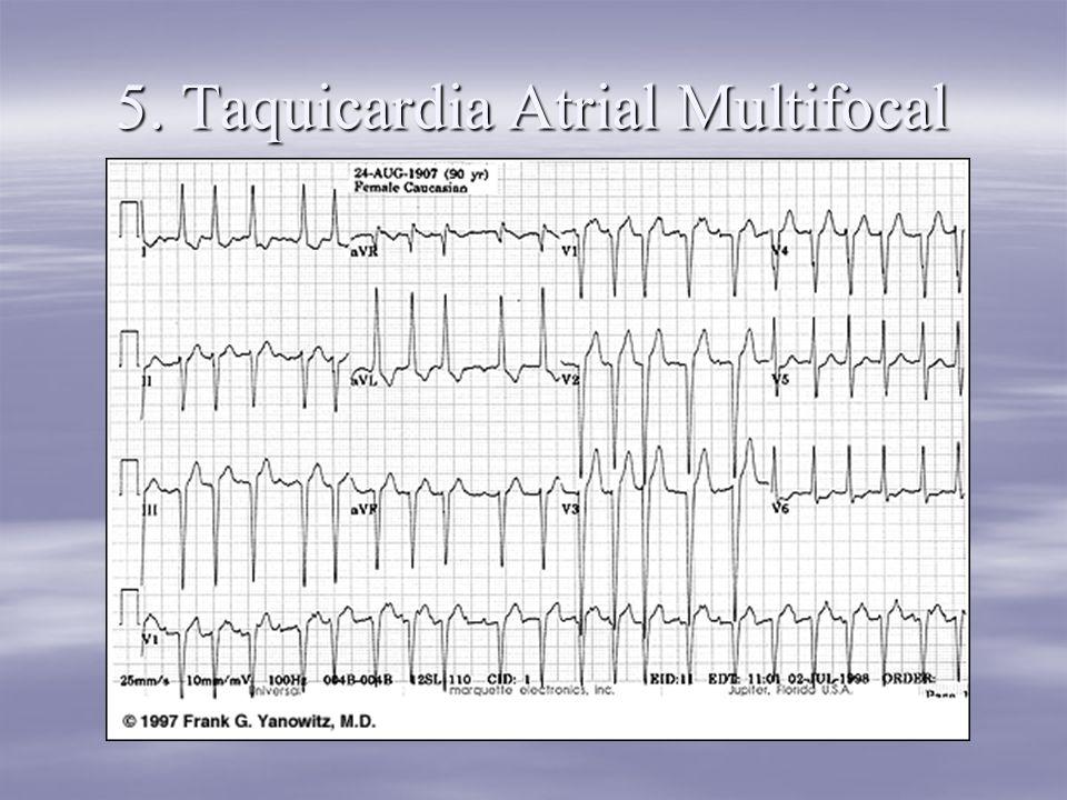 5. Taquicardia Atrial Multifocal