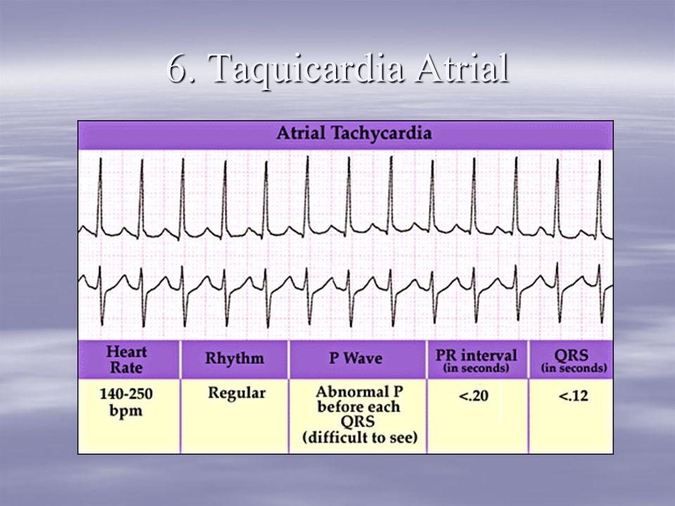 6. Taquicardia Atrial