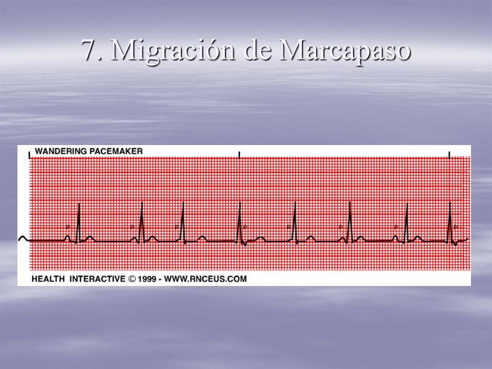 7. Migración de Marcapaso