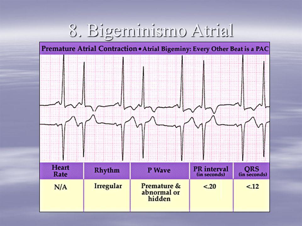 8. Bigeminismo Atrial