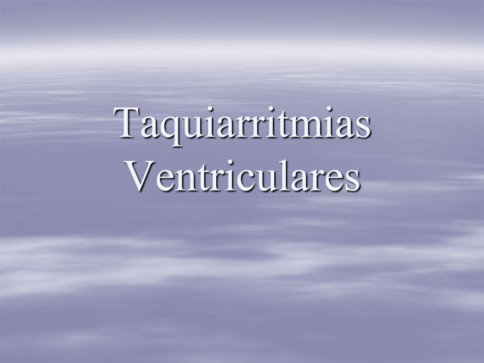 Taquiarritmias Ventriculares