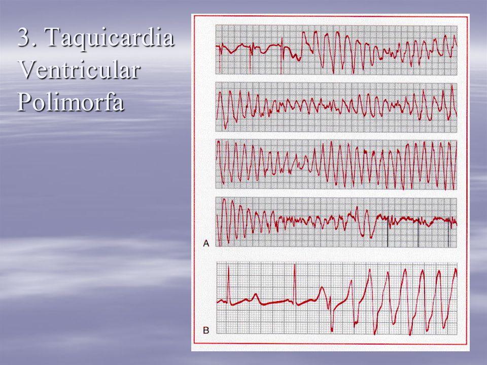 3. Taquicardia Ventricular Polimorfa