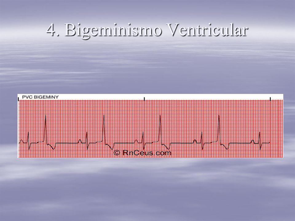 4. Bigeminismo Ventricular