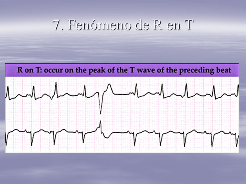 7. Fenómeno de R en T
