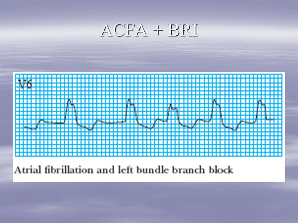 ACFA + BRI