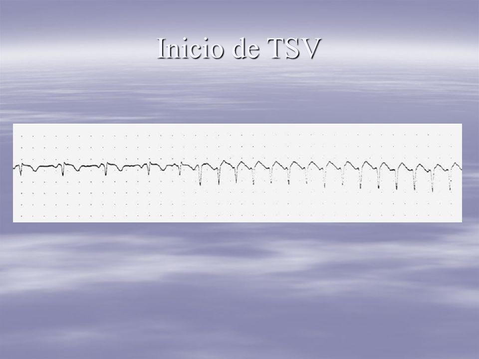Inicio de TSV