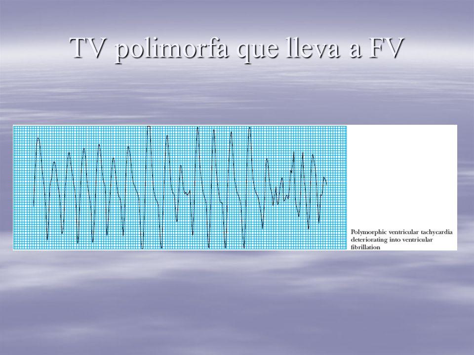 TV polimorfa que lleva a FV