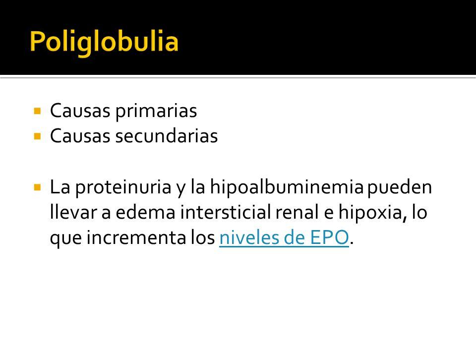 Causas primarias Causas secundarias La proteinuria y la hipoalbuminemia pueden llevar a edema intersticial renal e hipoxia, lo que incrementa los nive