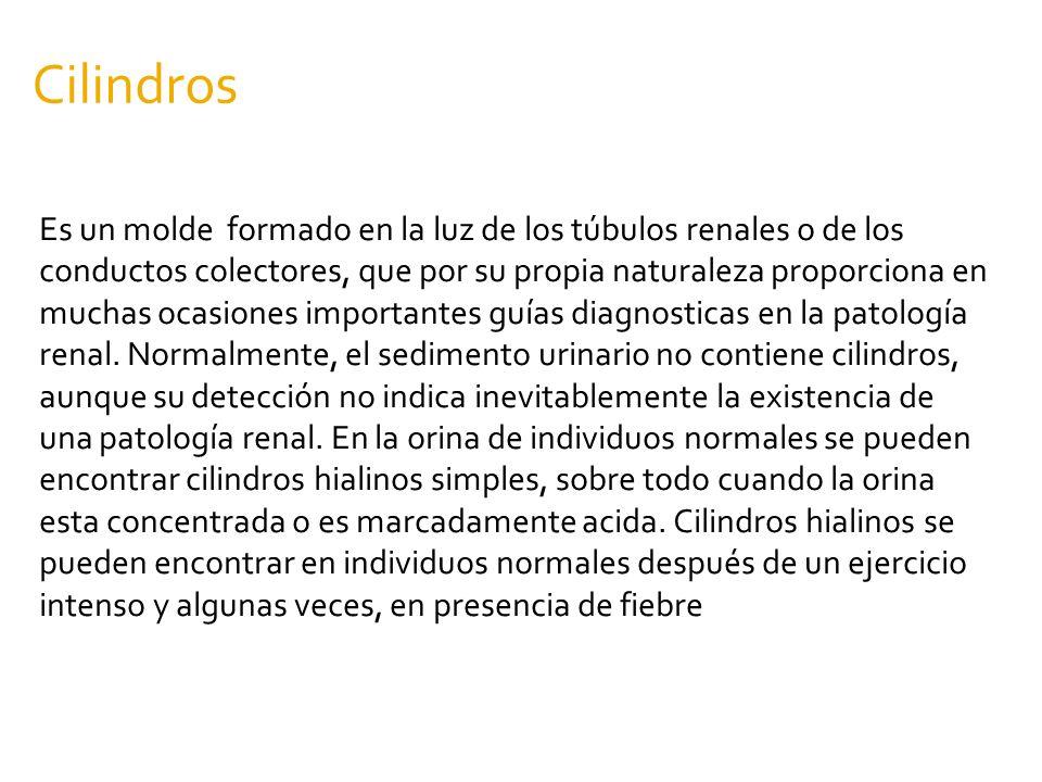 Cilindros Es un molde formado en la luz de los túbulos renales o de los conductos colectores, que por su propia naturaleza proporciona en muchas ocasi