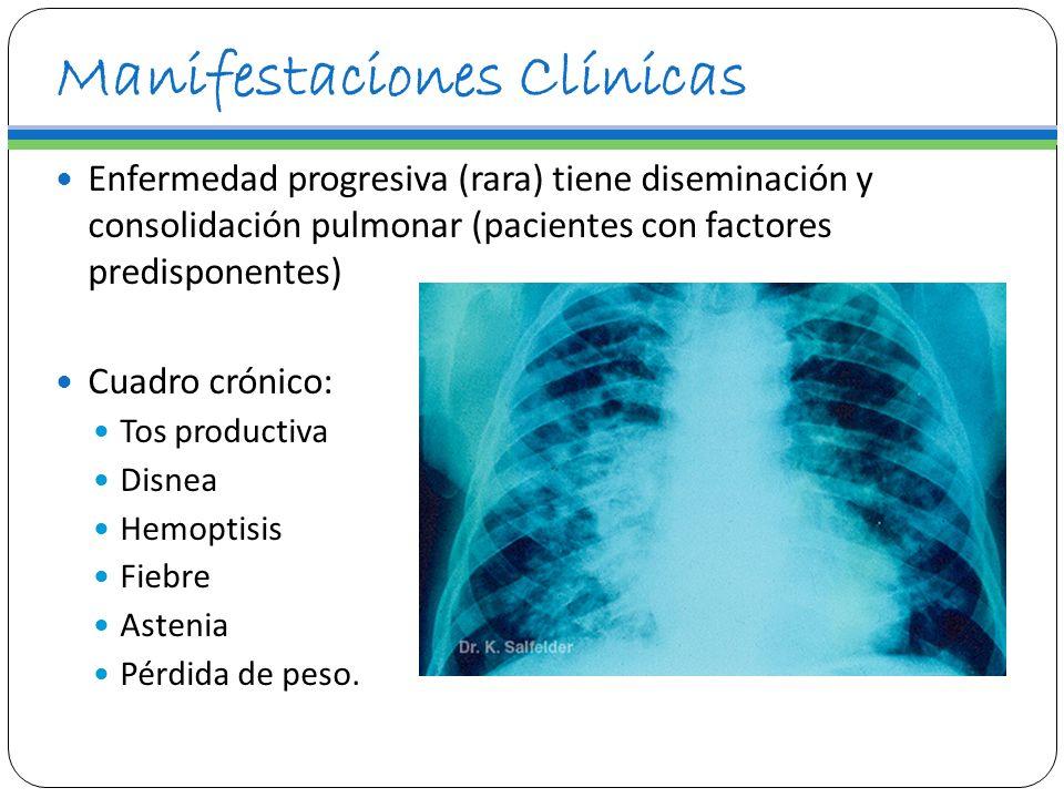 Manifestaciones Clínicas Enfermedad progresiva (rara) tiene diseminación y consolidación pulmonar (pacientes con factores predisponentes) Cuadro cróni