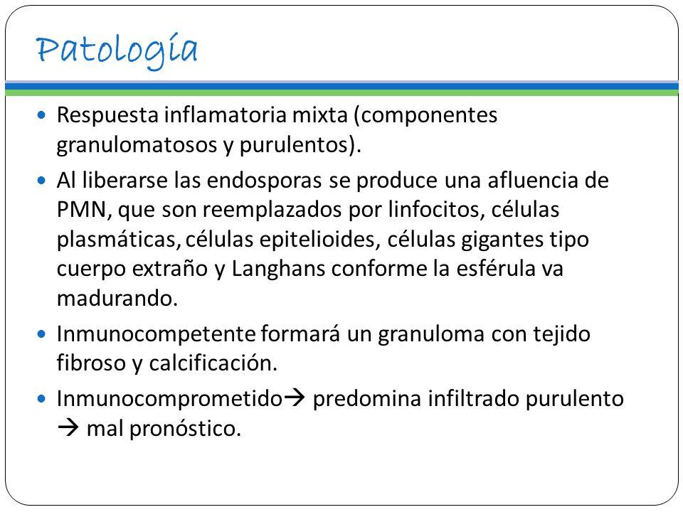 Patología Respuesta inflamatoria mixta (componentes granulomatosos y purulentos). Al liberarse las endosporas se produce una afluencia de PMN, que son