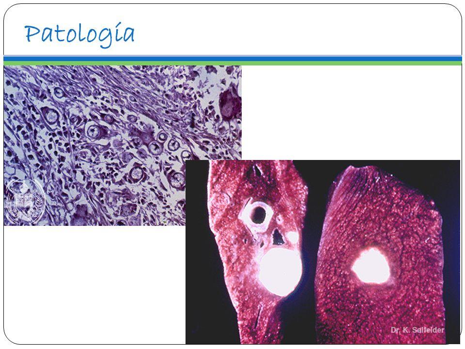 Patología Respuesta inflamatoria mixta (granulosa y purulenta) En el granuloma hay células gigantes tipo cuerpo extraño y Langhans, algunos pueden presentar levaduras en su interior.