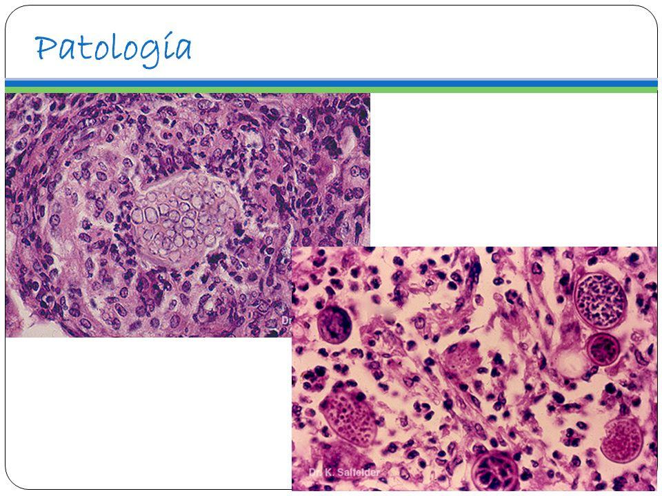 Manifestaciones Clínicas Incubación sumamente variable Dos posibles vías de infección: Inhalatoria foco primario pulmonar.