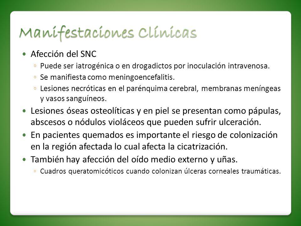 Afección del SNC Puede ser iatrogénica o en drogadictos por inoculación intravenosa. Se manifiesta como meningoencefalitis. Lesiones necróticas en el