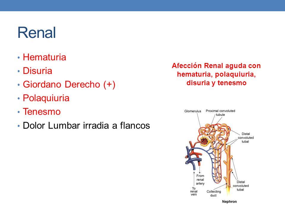 Renal Hematuria Disuria Giordano Derecho (+) Polaquiuria Tenesmo Dolor Lumbar irradia a flancos Afección Renal aguda con hematuria, polaquiuria, disur