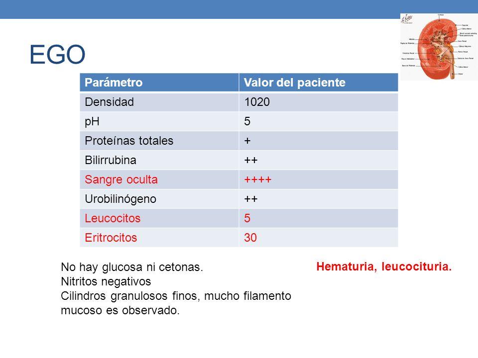 EGO ParámetroValor del paciente Densidad1020 pH5 Proteínas totales+ Bilirrubina++ Sangre oculta++++ Urobilinógeno++ Leucocitos5 Eritrocitos30 No hay g