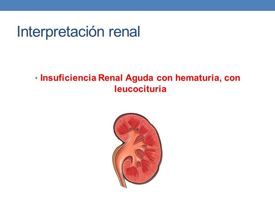 Interpretación renal Insuficiencia Renal Aguda con hematuria, con leucocituria