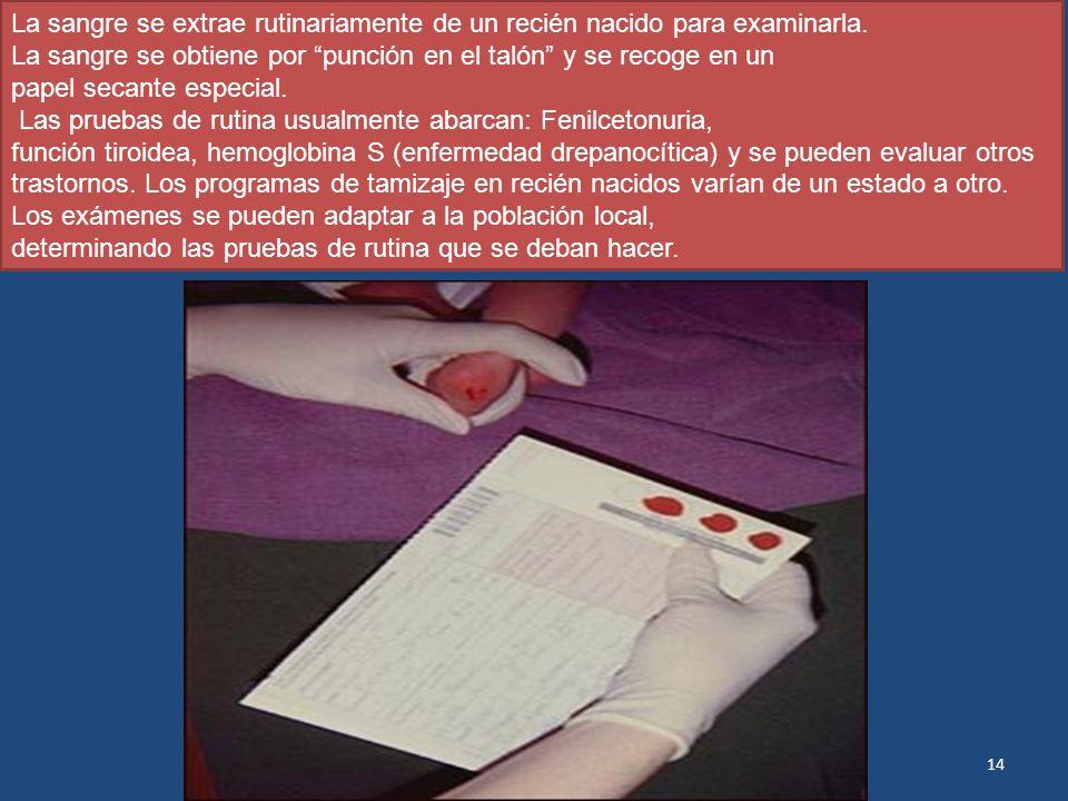 La sangre se extrae rutinariamente de un recién nacido para examinarla. La sangre se obtiene por punción en el talón y se recoge en un papel secante e