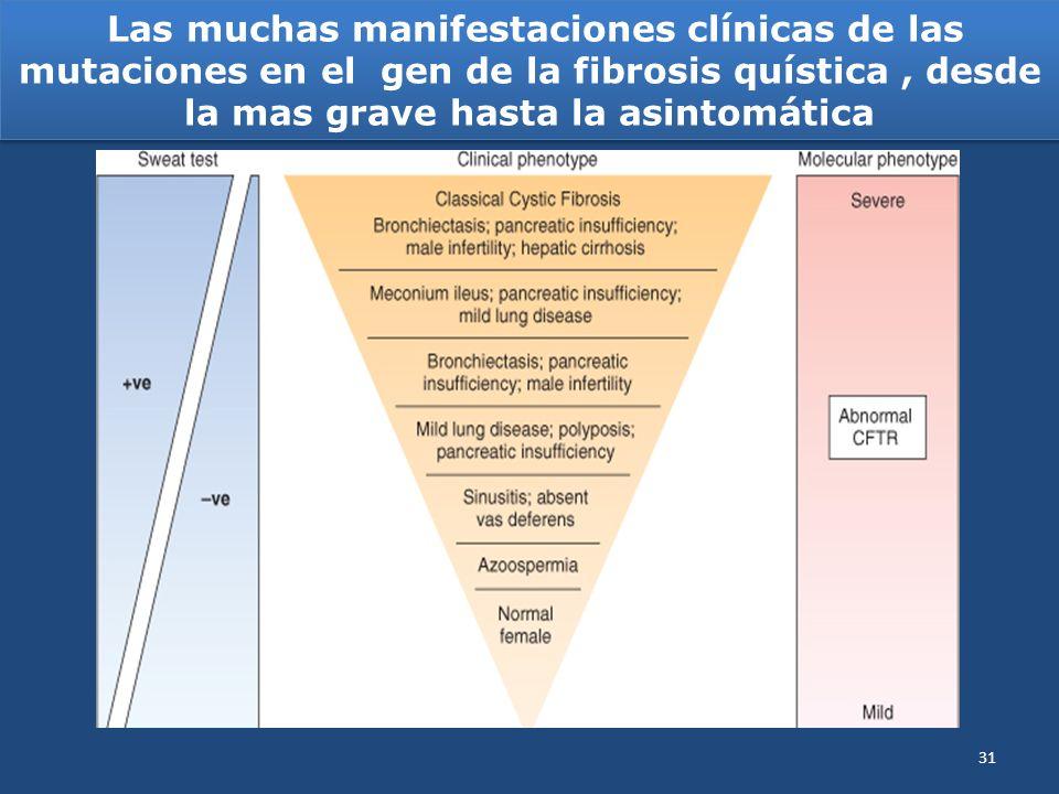 Las muchas manifestaciones clínicas de las mutaciones en el gen de la fibrosis quística, desde la mas grave hasta la asintomática 31