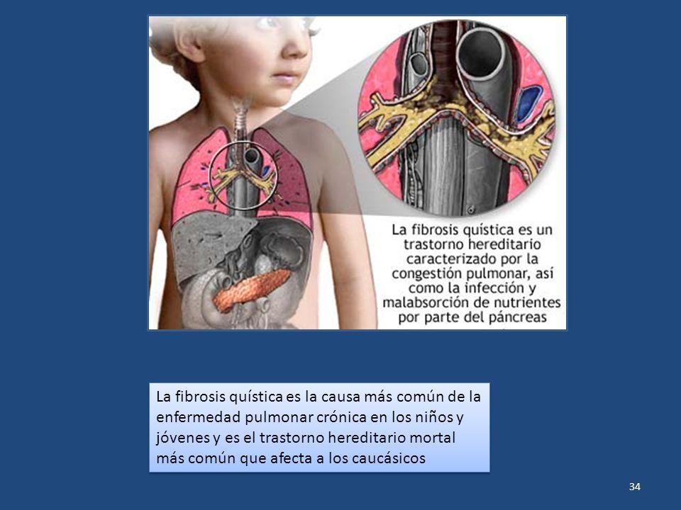 34 La fibrosis quística es la causa más común de la enfermedad pulmonar crónica en los niños y jóvenes y es el trastorno hereditario mortal más común